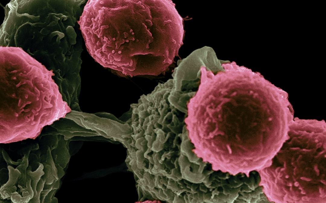 Éviter de développer un cancer grâce à trois actions